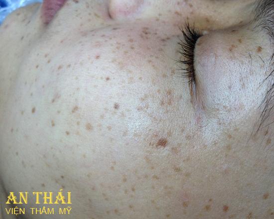 Xóa tàn nhang - Thẩm mỹ An Thái