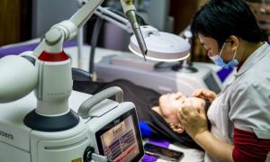 Trị sẹo lõm – Công nghệ 5D