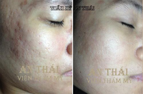 Trước và sau trị sẹo lõm