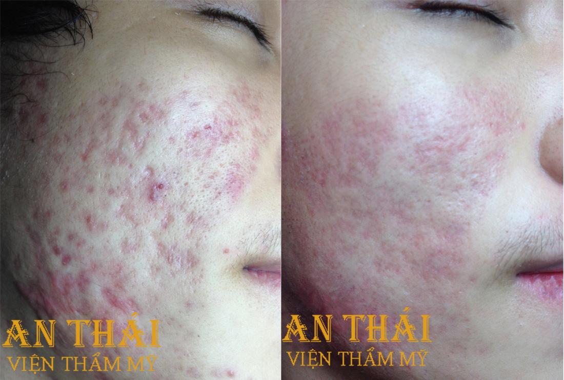 Trị sẹo lõm - Thẩm mỹ An Thái