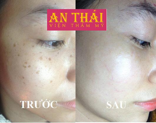 Hình ảnh Trị tàn nhang tại Thẩm mỹ An Thái