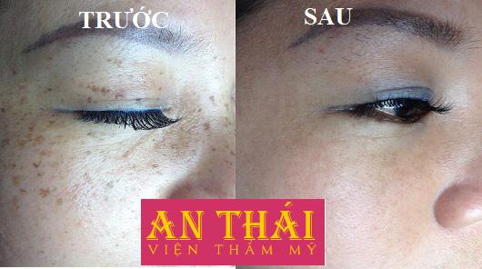 Hình ảnh Trị tàn nhang tận gốc tại Thẩm mỹ An Thái 01