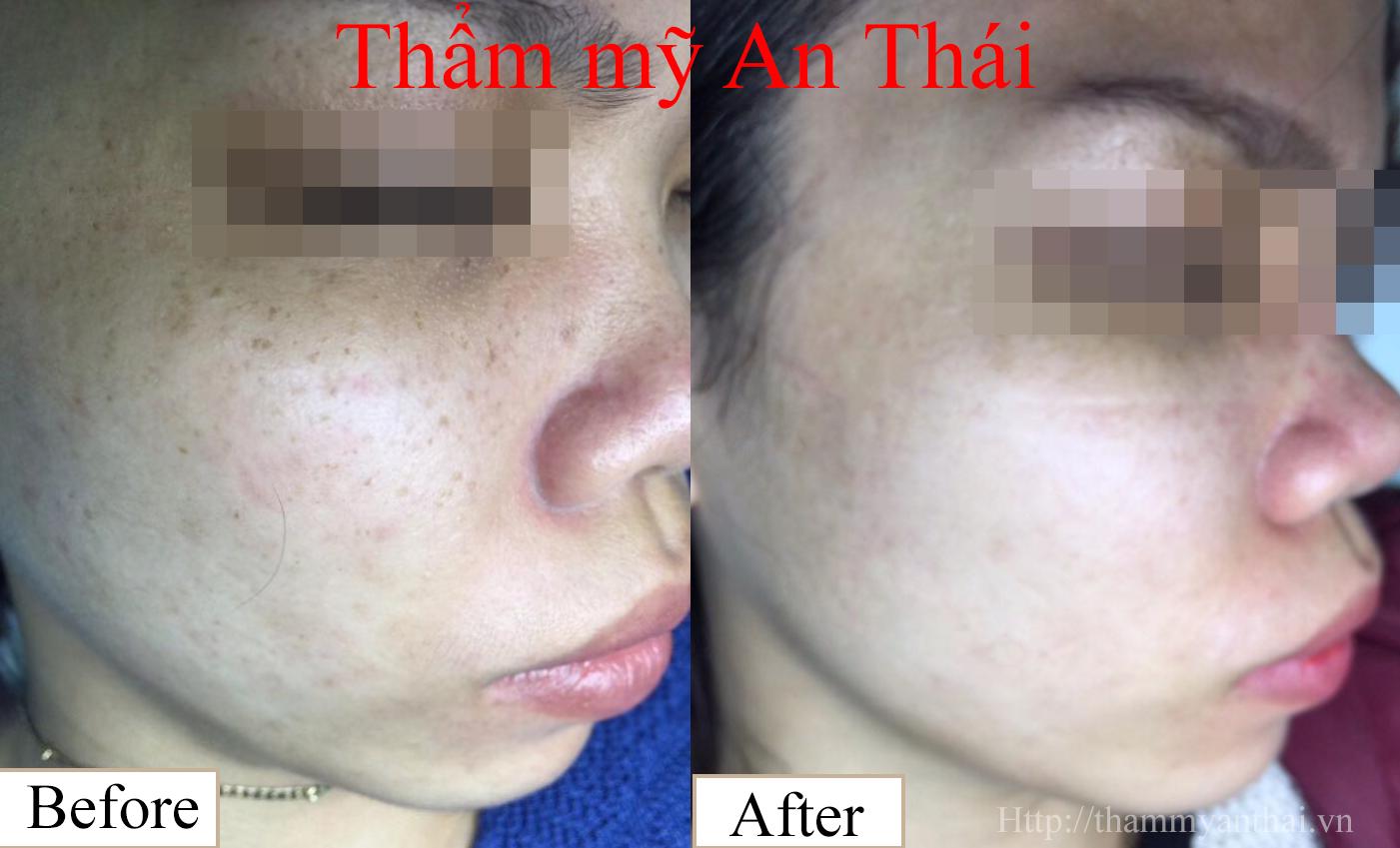 Hình ảnh Trị tàn nhang tận gốc tại Thẩm mỹ An Thái